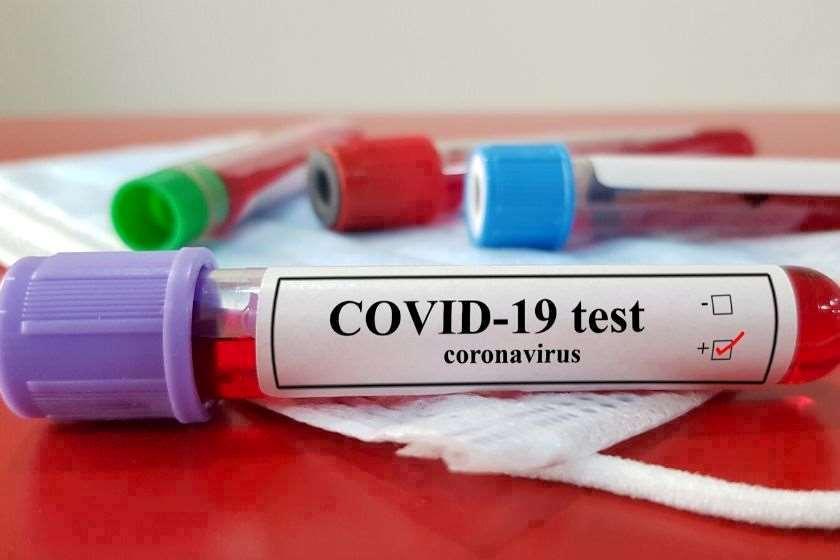 კორონავირუსის ტესტირება